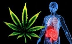 cannabis-and-crohns-disease-text
